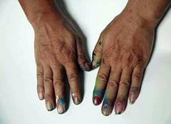 油漆弄到皮肤上怎么清洗好 不妨试试