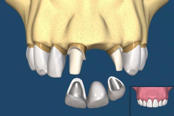 陶瓷牙套和钢牙套区别 陶瓷牙套的优缺点 陶瓷牙套价格表
