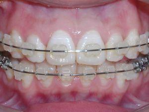 烤瓷牙套里的牙会烂吗