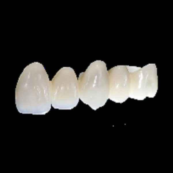 陶瓷牙套和钢牙套区别